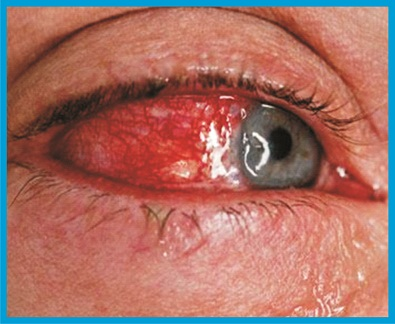 Conjunctivitis: Dos and don'ts