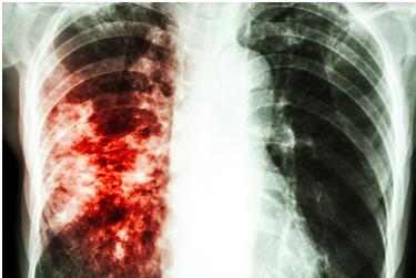 Tubberculosis